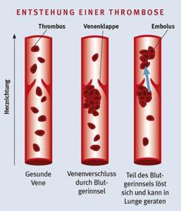 Entstehung einer Thrombose